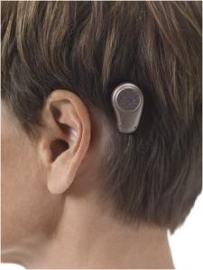 A bone-anchored hearing aid sends sound through the bones instead of through air.