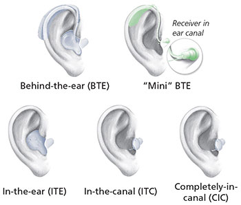 """A picture with 5 different hearing aids: Behind-the-Ear, """"Mini"""" BTE, In-the-ear (ITE), In-the-canal (ITC), and Completely-in-canal (CIC)."""
