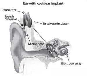 An ear with a cochlear implant